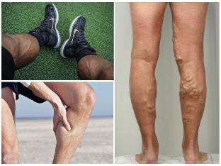 gyógyszerek visszér visszér a lábakon