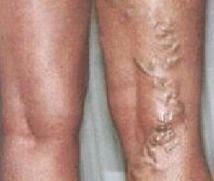 fotó a varikózis a lábakon és a fekélyek hajdina diéta visszér ellen