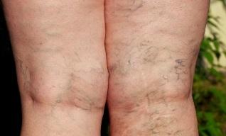 1. fotó a visszér, Alsó végtagok varicose betegsége 2 fokos fénykép