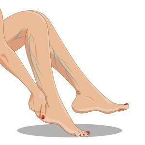 hepatitis és visszér a lábakon lévő visszérektől, ami jobb